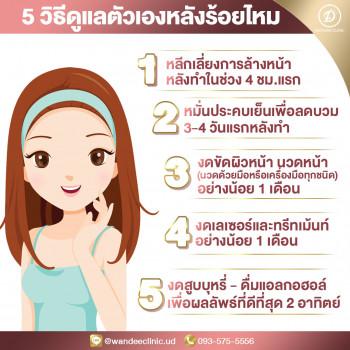 5 วิธีดูแลตัวเองหลังร้อยไหม ร้อยไหมอุดร