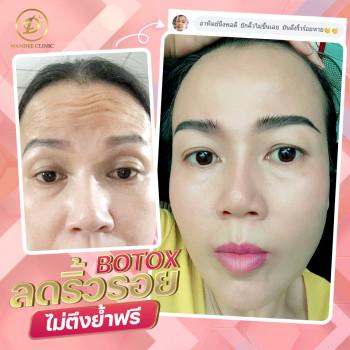 หมดปัญหาริ้วรอย เหี่ยวย่น ด้วย Botox ลดริ้วรอย โบท